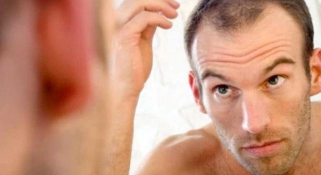 Ученые назвали продукт, который замедлить процесс облысения у мужчин