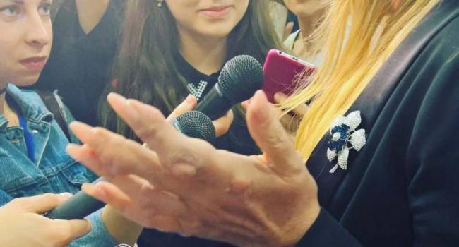 В сети появились страшные фото болезни российской певицы