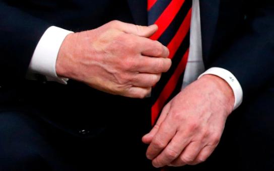 «Вцепился, как клещ»: Макрон до боли сжал руку Трампа