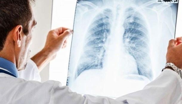 Украина стала лидером в Европе по заболеванию туберкулезом