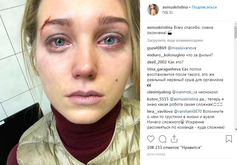 «Харламов девушек бьет?»: Кристина Асмус ужаснула фанатов селфи ссиняками и ранами