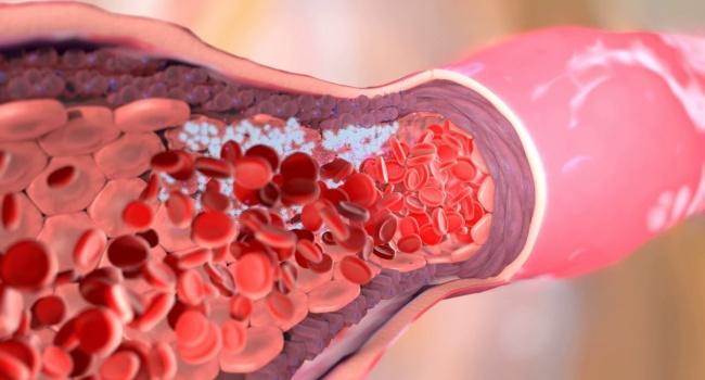Медики назвали признаки наличия тромба