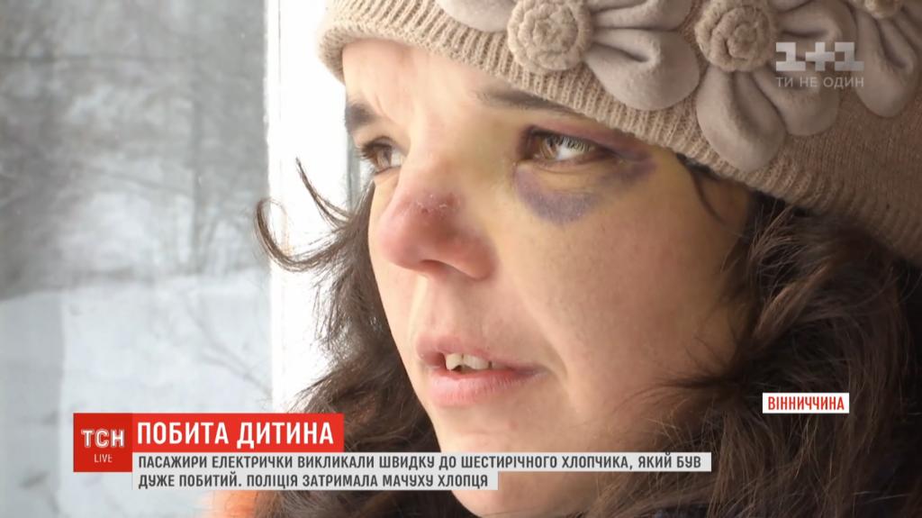 Избиение ребенка на Винниччине: родители объяснили произошедшее