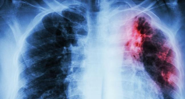 У школьника в Мариуполе обнаружили туберкулез
