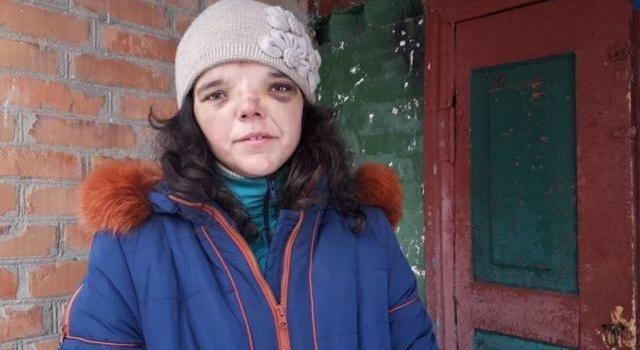 Избиение ребенка на Винниччине: мачеха исчезла без следа