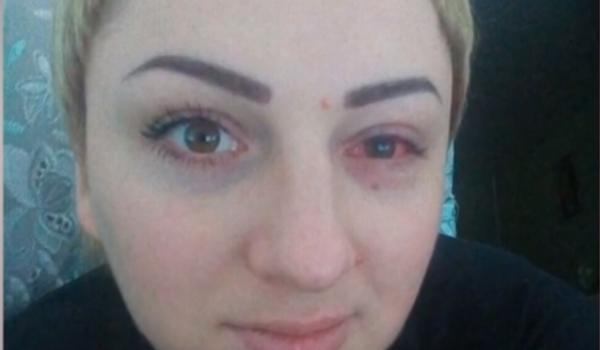 Химический ожог и эрозия: украинка потеряла зрение на одном глазу после популярной косметической процедуры