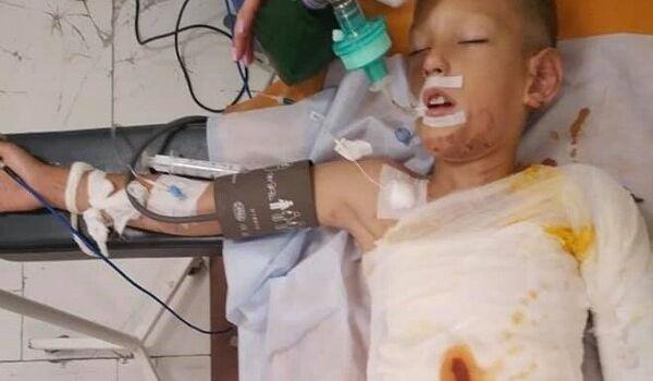 В Днепре ребенка облили бензином и подожгли: первые подробности