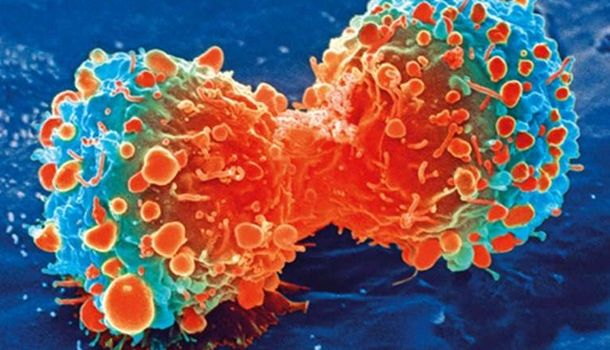 Ученым удалось совершить прорыв в лечении смертельных форм рака