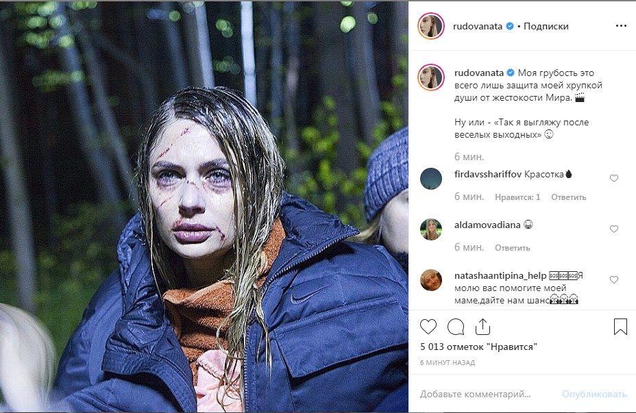 «Что с тобой?» Звезда сериала «Универ» ужаснула сеть опухшим лицом в синяках и порезах