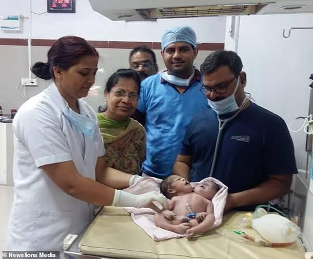 В Индии родился двухголовый ребенок с тремя руками