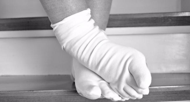 «Долго и мучительно»: Медики рассказали, как необходимо бороться с рожей