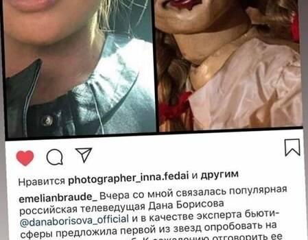 Дана Борисова решилась на губы-осьминоги