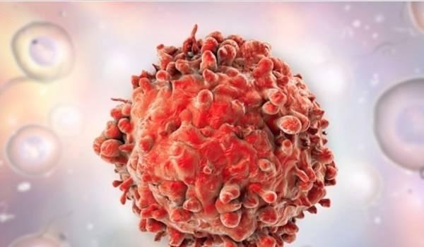 Медики дали корисні поради людям за 40, як не захворіти на рак