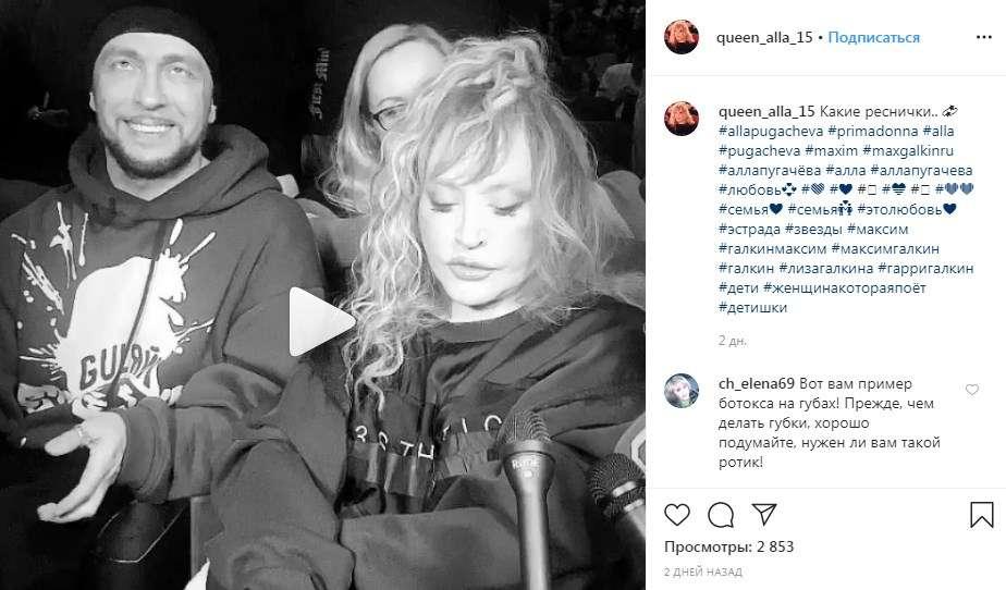 «Глаза уже с трудом открываются. Утянули кожу за уши с лихвой»: Пугачева напугала своей пластикой лица, из-за которой не шевелится нижняя губа