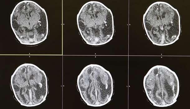 Японские ученые определили причину шизофрении