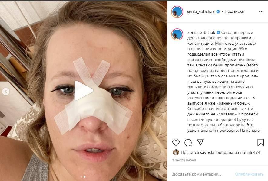 «Перелом носа и сотрясение»: Ксения Собчак перед голосованием за поправки в Конституцию РФ попала в больницу с серьезными травмами