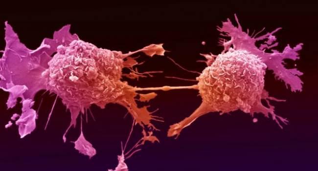 Это уже тяжелая стадия: медики рассказали о самом опасном симптоме рака лёгких