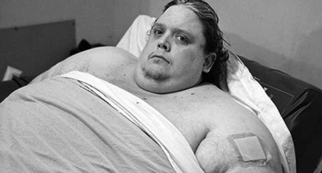 «Переедание может оказаться смертельным»: Медики рассказали сколько места в желудке