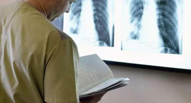 Врачи назвали шесть ранних признаков рака легких