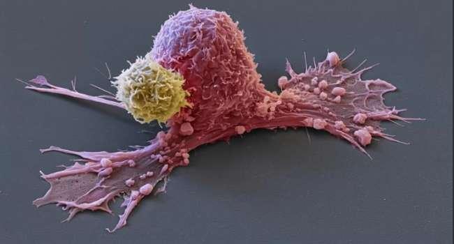 Учёные назвали людей, у которых никогда не будет онкологии