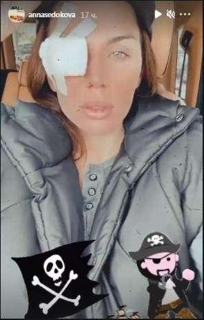 «Вы же видели у меня был огромный глаз, потом поменьше, но очень болезненный, потом превратился в маленький мерзкий шарик»: Анне Седоковой удалили опухоль на глазе