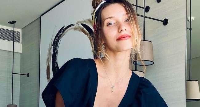 «Я все время замазывала, либо просила оператора снимать определенный кадр или вырезать»: Тодоренко снялась в фотосессии, не став скрывать пятна витилиго на ноге