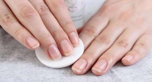 «Не только явные признаки»: медики рассказали, как состояние ногтей указывает на развитие рака