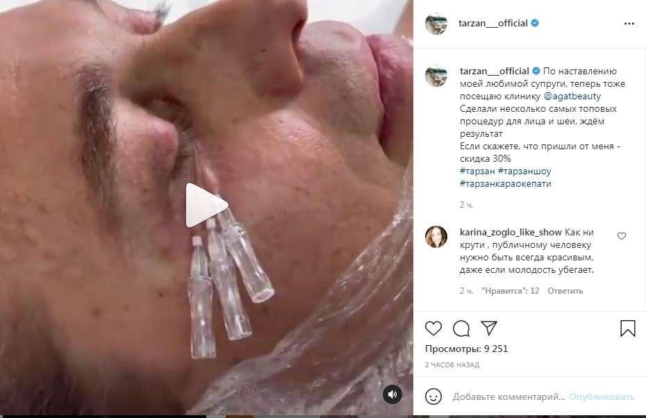 «А-а-а-а, только показывать это не надо»: Тарзан снял на видео, как ему под глазом протыкали кожу иголками